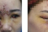 Cô gái 27 tuổi hỏng một mắt sau khi tiêm filler nâng mũi