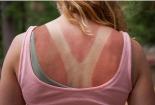 Kem chống nắng 'home made' có thể gây ung thư da