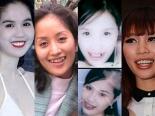 Những hàm răng 'đau khổ' của sao Việt chỉ muốn chôn vùi vào quá khứ