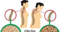 http://vietq.vn/canh-bao-nguoi-dung-thuoc-corticosteroid-tri-hen-suyen-co-nguy-co-bi-loang-xuong-d179911.html