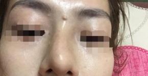 Cô gái hỏng mắt do biến chứng sau khi tiêm nâng mũi