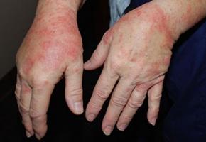 Mối nguy hại kinh hoàng từ nước rửa tay khô