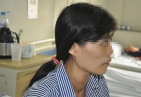 Nhiều người bị hoại tử vì dùng thuốc chữa bướu cổ của thầy lang