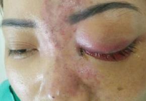 Vợ mù mắt vì chồng không bằng cấp tiêm filler