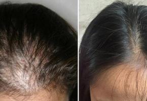 Thuốc chống rụng tóc có thực sự hiệu quả như tin đồn?