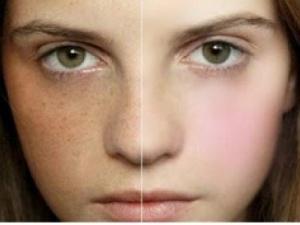 Mẹo hay xóa sạch nhanh chóng tàn nhang trên khuôn mặt