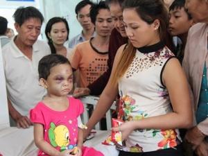 Ai giải cứu cháu bé 4 tuổi bị cha mẹ đánh đập ở Bình Dương?