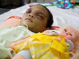 Ai được nuôi bé gái 4 tuổi bị bạo hành dã man ở Bình Dương?