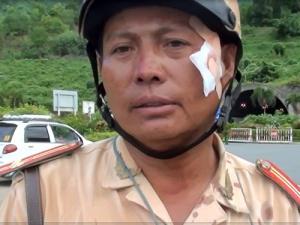 Lời kể của trung tá CSGT bị tài xế xe đầu kéo ép ngã