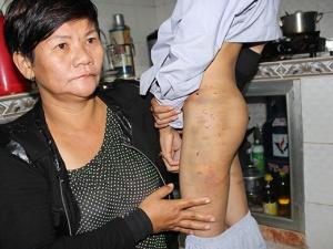Khởi tố vụ hai chú tiểu bị đánh đập dã man