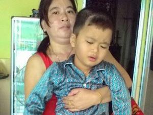 Bé trai 8 tuổi bị cưa chân: Do bác sĩ thiếu kiến thức chuyên môn