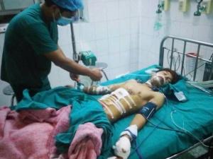Thiếu niên thủng bụng, cụt tay vì đèn pin Trung Quốc phát nổ