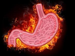 Bệnh đau dạ dày nên kiêng những gì?