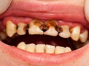 Con người sắp không còn sợ... sâu răng?