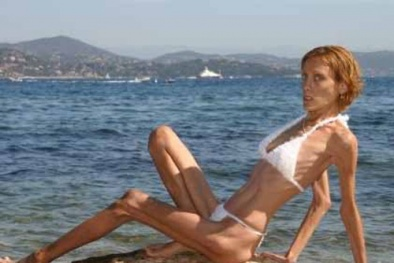 Pháp: Người mẫu siêu gầy sẽ bị phạt hàng tỷ đồng