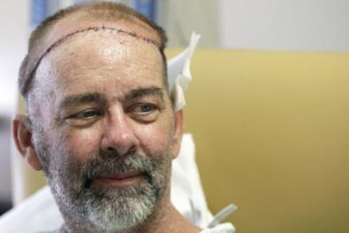 Mỹ cấy ghép thành công hộp sọ cho người mắc chứng ung thư hiếm gặp