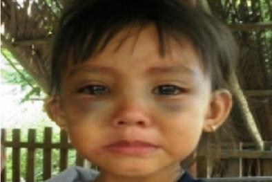 Bé gái 5 tuổi phải nhập viện vì bị bà ngoại kế bạo hành dã man?