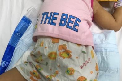 Bé gái 2 tuổi bị máy xát gạo nghiến nát chân