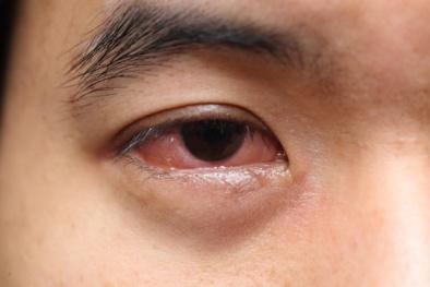 Sơ cứu bỏng mắt hiệu quả, nhanh chóng