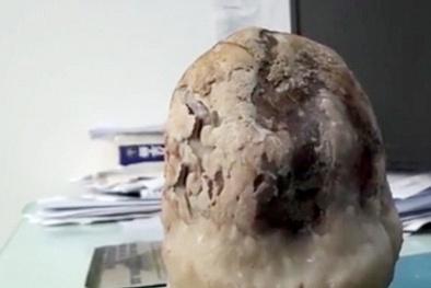 Ớn lạnh ca phẫu thuật sỏi mật 'khủng' ở Trung Quốc