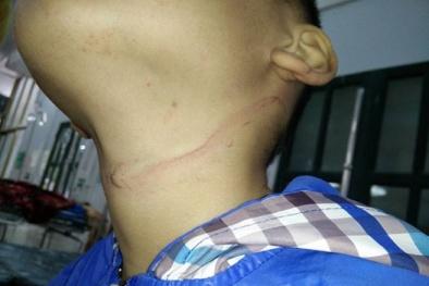 Thắt cổ bằng dây điện, trẻ 7 tuổi được cứu sống