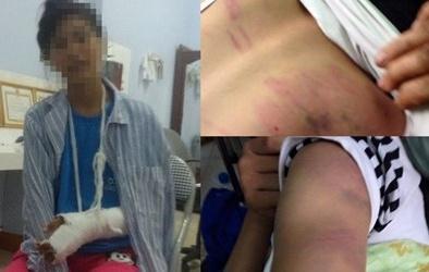 Tâm trạng hoảng loạn của nữ sinh cấp 2 bị bố đánh dã man