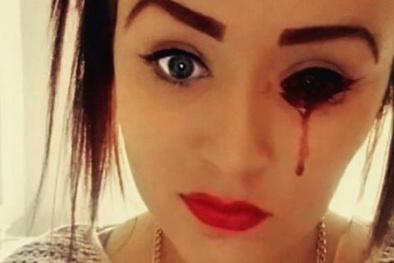 Bác sỹ bó tay trước cô gái có đôi mắt 'biết chảy máu'