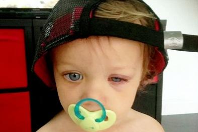 Mắt gần như mù vì hóa chất trong viên thuốc tẩy rửa
