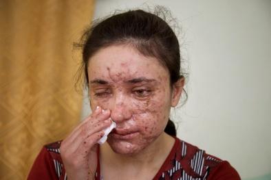 'Địa ngục' hiện hình trên khuôn mặt cô bé 18 tuổi bị ép làm nô lệ tình dục IS
