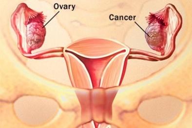 Ung thư buồng trứng vì thói quen này ở nhiều chị em