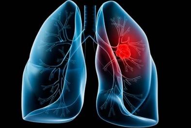 Vì sao không hút thuốc lá vẫn mắc ung thư phổi