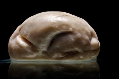 Phát hiện người không có não vẫn sống khoẻ mạnh