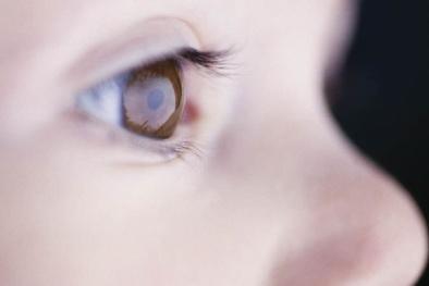 Ánh sáng trong nhà - thủ phạm 'hủy hoại' mắt của trẻ
