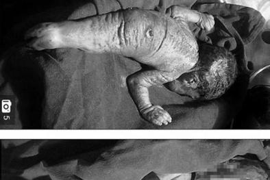 Chứng bệnh kỳ lạ khiến em bé chào đời trong hình hài người cá