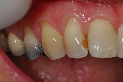 'Diệt gọn' sâu răng bằng bài thuốc từ thiên nhiên vô cùng đơn giản