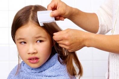 Thuốc diệt bọ chét, chấy rận ảnh hưởng nghiêm trọng tới trẻ em