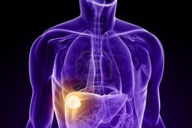 Người mắc bệnh viêm gan B không nên ăn gì?