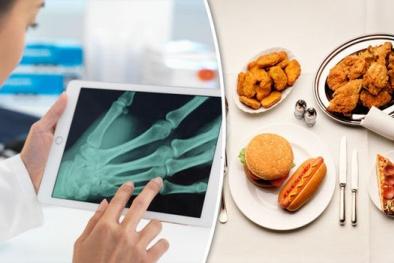 Thực phẩm chứa axit béo có thể khiến xương khớp trở nên 'mỏng manh'