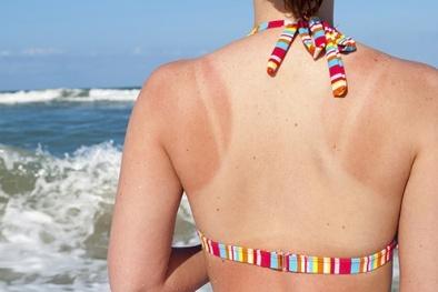 Chữa cháy nắng cấp tốc cho da với 5 sản phẩm từ thiên nhiên 'rẻ bèo' sau