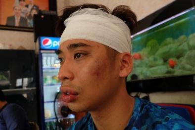 Huấn luyện viên California Fitness bị tố đánh người đến trọng thương ngay tại phòng tập