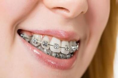 Niềng răng không đúng cách có thể bị 'bay' cả hàm