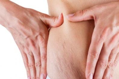 5 mẹo đơn giản giúp bạn xóa sạch những vết rạn da xấu xí