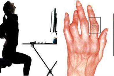 Dân văn phòng tự ý sử dụng thuốc chữa bệnh đau xương khớp có thể bị tàn phế