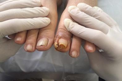 Người bị bệnh tiểu đường ngâm chân vào nước muối coi chừng mất chân