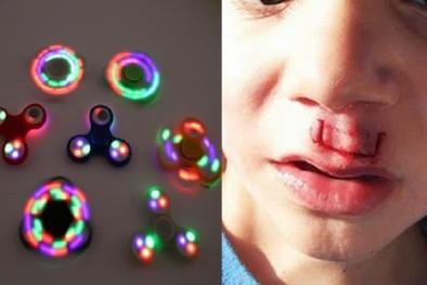 Đồ chơi fidget spinner chạy bằng pin có nguy cơ gây cháy nổ và nghẹt thở cho trẻ