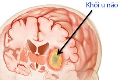 Nhức đầu là một trong 8 dấu hiệu cảnh báo ung thư não