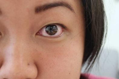 Giải mã tại sao có hiện tượng nháy, co giật mắt ở người