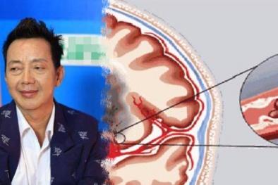 Căn bệnh khiến diễn viên hài Khánh Nam nguy kịch nguy hiểm đến mức nào?