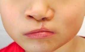 Ngày nhân đạo DrD hỗ trợ chi phí phẫu thuật sửa sẹo mũi môi dị tật cho trẻ