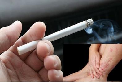 Hút thuốc lá có thể gây viêm da cơ địa khó chữa
